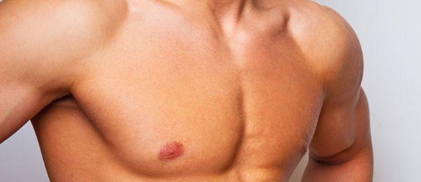 Ginecomastia masculina: el desarrollo de mamas en el hombre