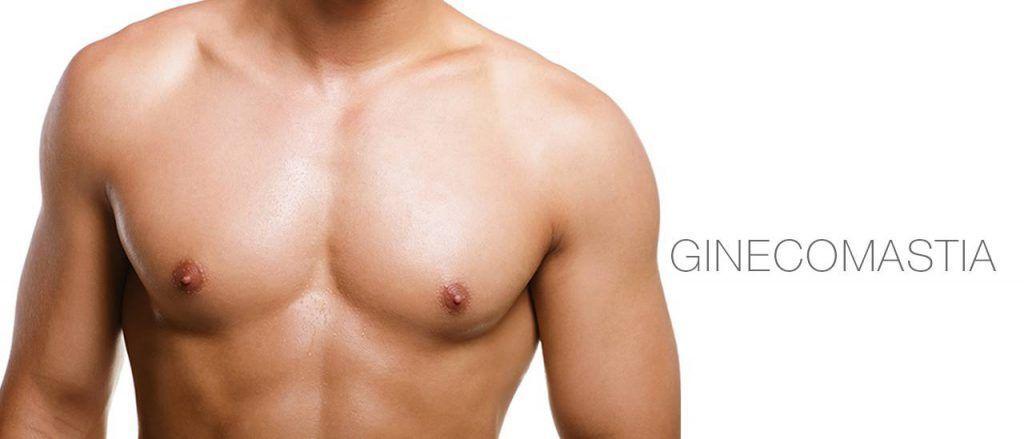 La ginecomastia es el crecimiento anormal de la mama en el hombre. La cirugía de ginecomastia es una de las más solicitadas por los hombres.