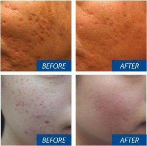 Tratamiento con Dermapen: cicatrices de acné
