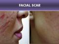 Tratamiento con Dermapen: cicatrices