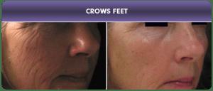 Tratamiento con Dermapen - Arrugas : Antes y Después