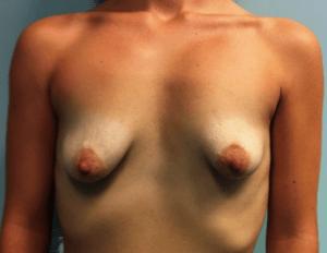 Mamas Tuberosas (Antes)