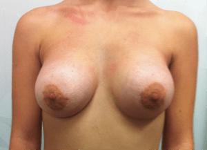 Mamas Tuberosas (Después)