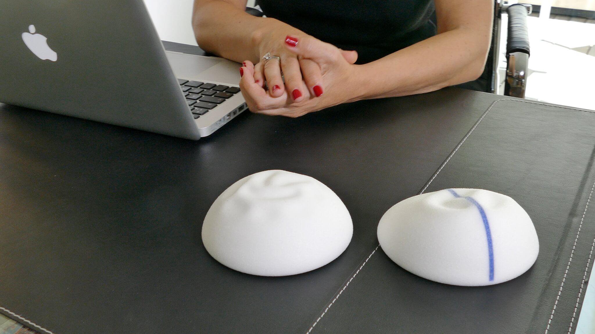 La marca alemana de implantes B-Lite ha lanzado su nueva web y han decidido incorporar el vídeo que os hice para presentar sus implantes a mis pacientes y seguidoras.