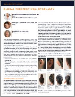 La ISAPS News publica mi artículo sobre la otoplastia en niños