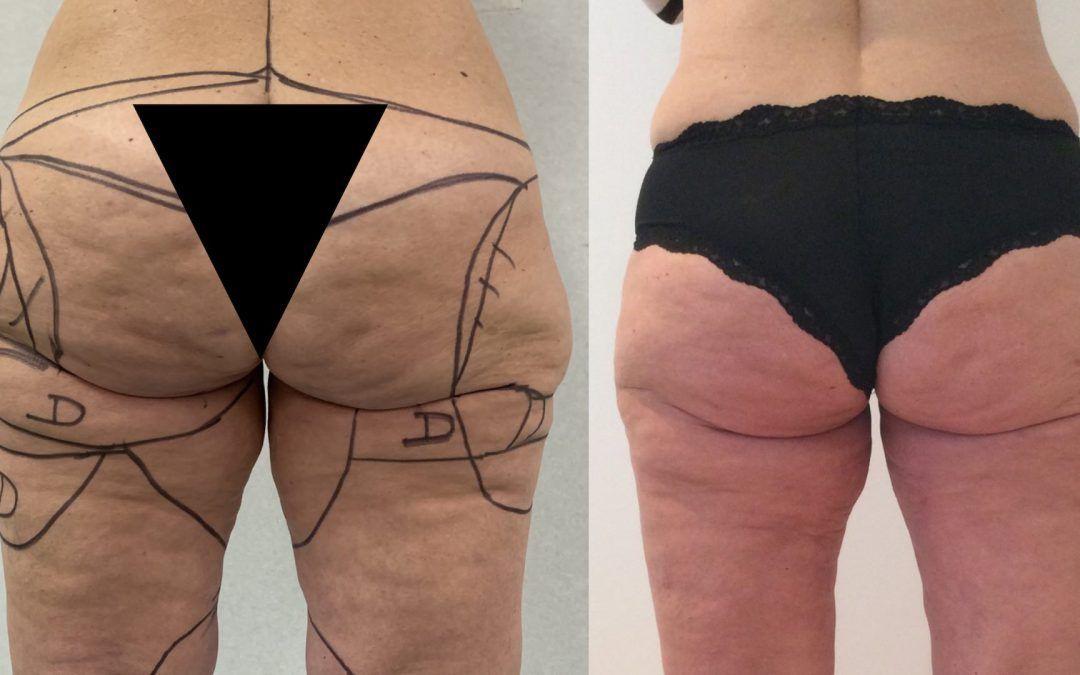 El lipedema es una alteración en la distribución del tejido graso, que afecta casi exclusivamente a las mujeres y afecta fundamentalmente a las extremidades inferiores.