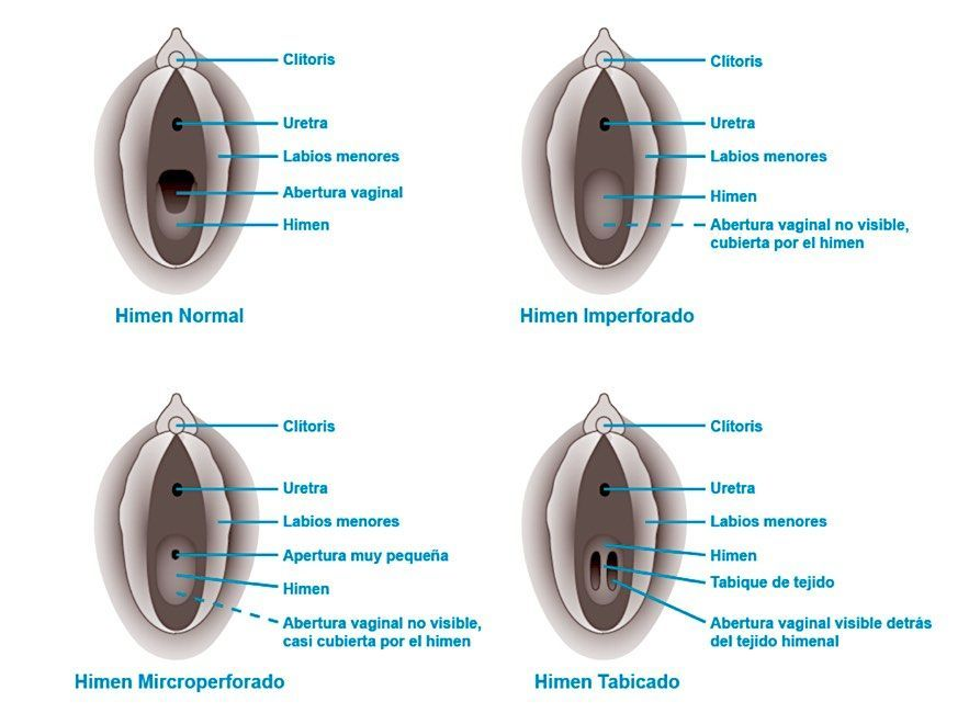 Himenoplastia: reconstrucción del himen con cirugía